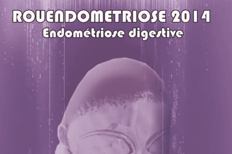 Endométriose digestive