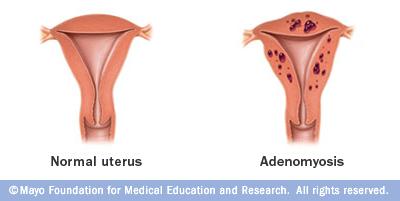 mcdc7_adenomyosis
